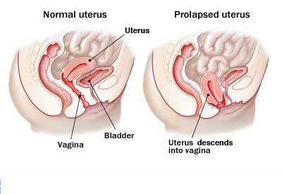 What Can Females do to Ease the Symptoms of Uterus Prolapse?