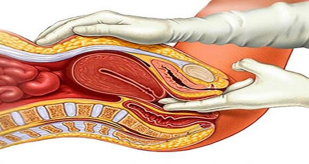 Uterus Down Problem Ayurvedic Medicine