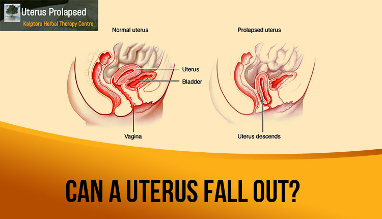 What happens if you're Uterus Falls Out Of Its Usual Position?
