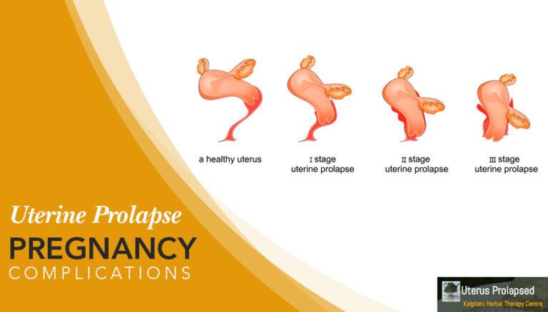 Uterine Prolapse Pregnancy Complications