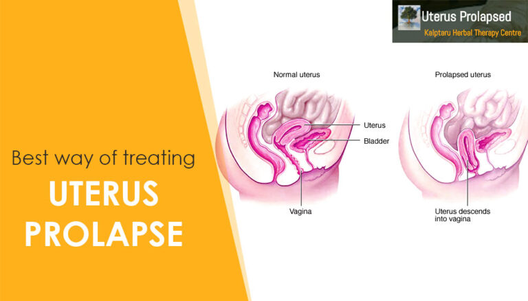 Best Way Of Treating Uterus Prolapse