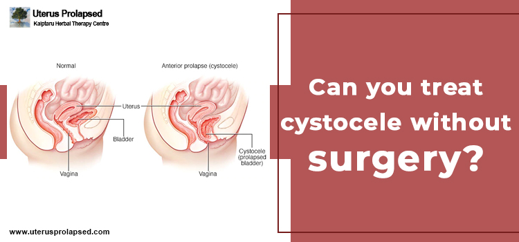 Can You Treat Cystocele Without Surgery?