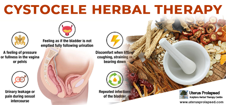 Cystocele Herbal Therapy